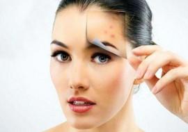 Прыщи на лице: избавляемся от них диетой, косметикой и лекарствами