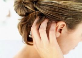 Прыщи на голове: выясняем причину и решаем проблему