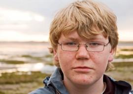 Почему появляются подростковые прыщи у мальчиков, и как их лечить?