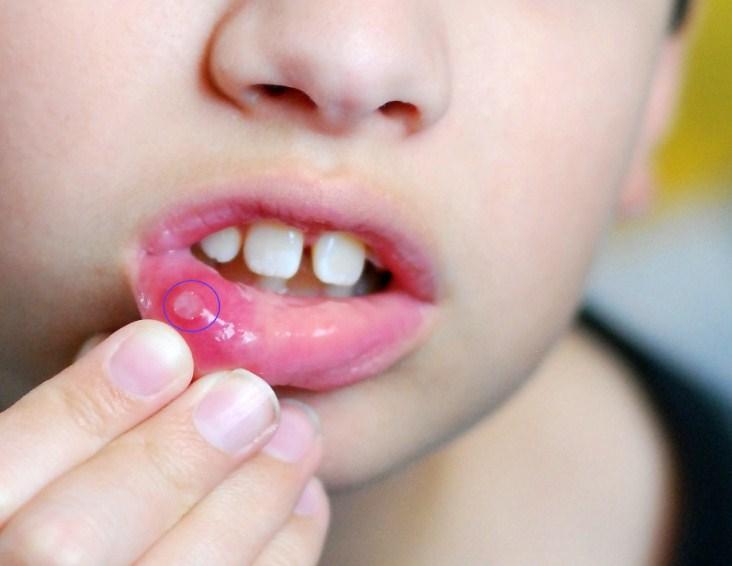 Чем лечить прыщик на губе