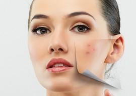 Как убрать пятна от прыщей на лице: эффективные средства