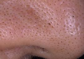 Эффективное средство от черных точек на носу