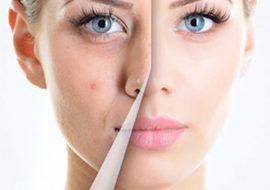 Лазерное лечение акне: преимущества и противопоказания процедуры