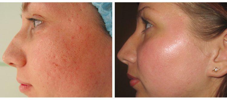 лечение акне: до и после