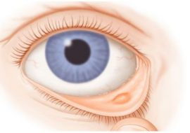 Как лечить прыщ на веке глаза