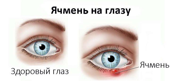 Прыщ на веке глаза лечение