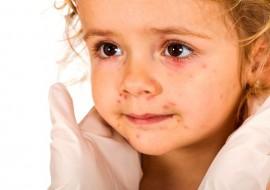 О чем говорят прыщики на теле у ребенка?