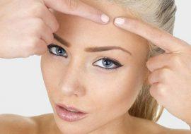 Виды прыщей на лице: описание, стадии заболевания, лечение