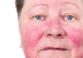 Демодекоз – причины, симптомы и лечение