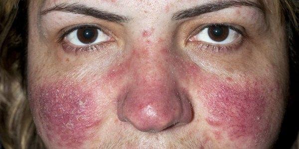Виды, симптомы, варианты лечения экземы на лице