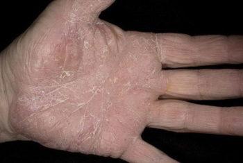 псориаз на ладонях рук